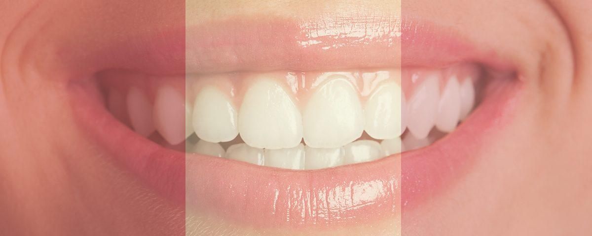 Color saludable de nuestra boca