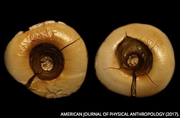Foto de empastes dentales paleolíticos