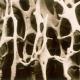 NRAS Osteoporosis