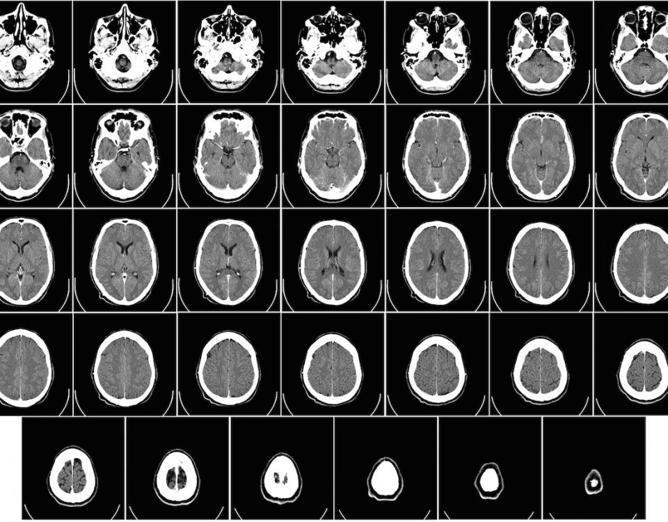 Tomografía del cerebro humano