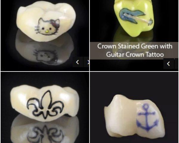 Tatuajes en las coronas de los implantes dentales