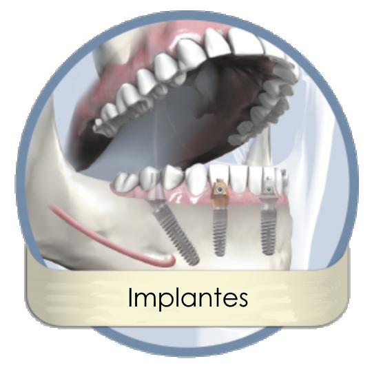 bredent_implantes