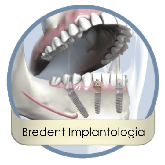 bredent_implantologia