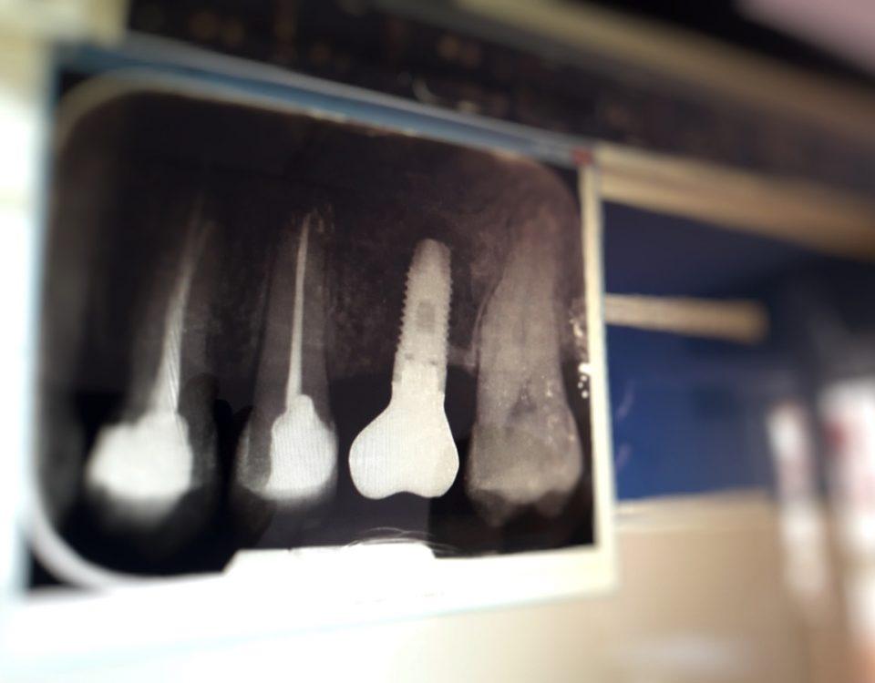Implante Dental Bredent y vitamina D